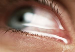 ليست دليلًا على الحزن فقط.. 7 أمراض تكشف عنها دموع العين