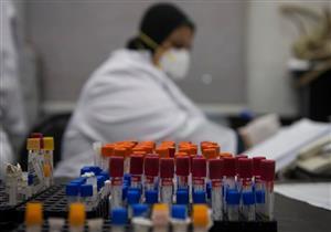 فيروس كورونا.. حالات يجب عليهم التوجه للحميات أو الاتصال بالخط الساخن