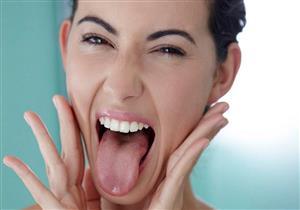 بعضها يستدعي زيارة الطبيب.. 8 أسباب وراء الإصابة بحروق اللسان