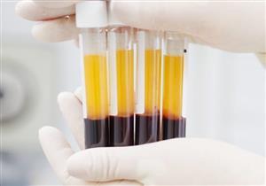 الصحة تعلن تعافي 70% من المصابين بكورونا بعد الحقن بالبلازما