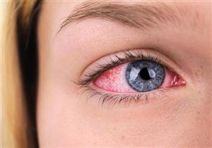 متى يؤدي جفاف العين إلى الإصابة بقرح القرنية؟