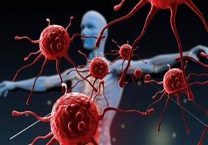 اختبار جديد للكشف عن الإصابة بالسرطان قبل 4 سنوات