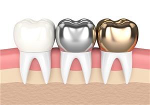 5 أنواع لطربوش الأسنان.. كيف تحافظ على عمره الافتراضي؟