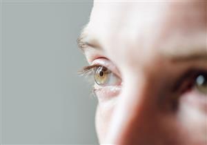 يصعب تشخصيه بالأعراض.. كل ما تريد معرفته عن شلل العين الجزئي