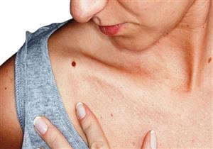 """طبيب أطفال يكشف خطورة الشامة: """"علامة منذرة على سرطان الجلد"""""""