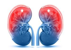 أعراضها صامتة ومضاعفاتها خطيرة.. 7 أسباب لارتفاع نسبة اليوريا في الدم