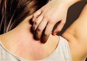 منها صبار الألوفيرا.. 4 علاجات منزلية للأرتيكاريا (صور)