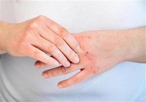 لمرضى السكري.. 5 مشكلات جلدية خطيرة تهددك