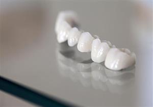 مميزات وعيوب أسنان السيراميك.. 5 نصائح للحفاظ عليها