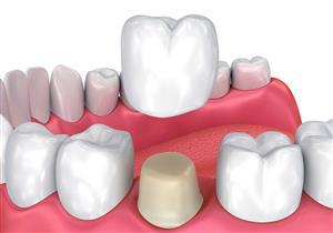 فوائد مذهلة لتغليف الأسنان.. متى ينصح الأطباء به؟