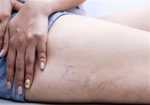 5 طرق طبيعية لعلاج تورم الجسم بعد الولادة.. متى يستدعي زيارة الطبيب؟