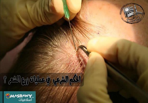 ما حكم الشرع في عمليات زرع الشعر ؟