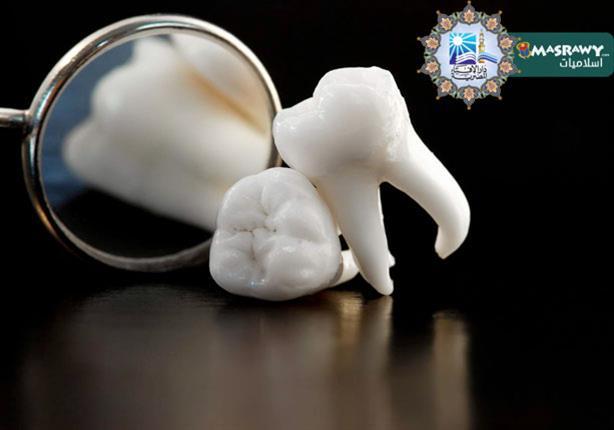 الإفتاء: خلع الأسنان في نهار رمضان «جائز» بشرط