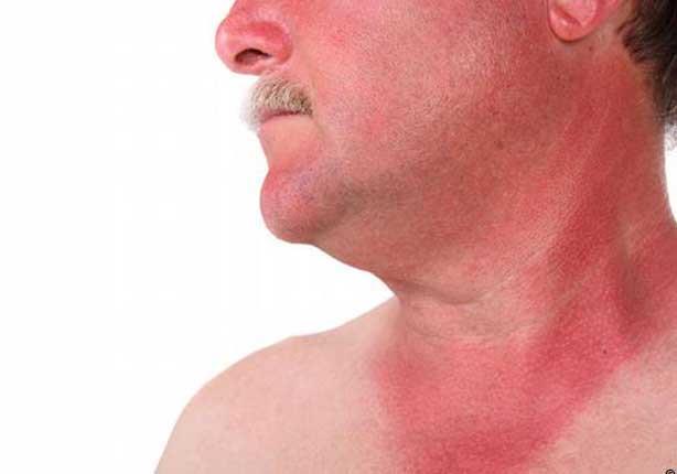 """""""منها حروق الشمس"""".. مشكلات صحية تصيب بشرتك في الصيف"""