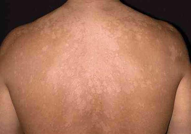 تظهر في الحر هذه أسباب الإصابة بالتينيا الملونة وطرق علاجه