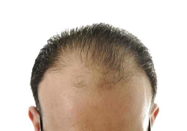 للرجل شعرك خفيف 6 حيل تجعله أكثر كثافة مصراوى