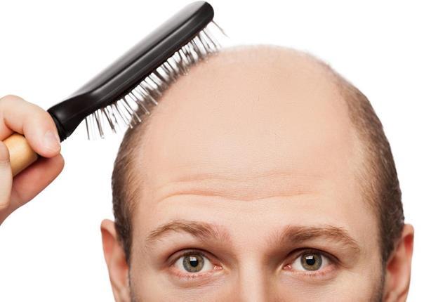 للرجل.. 5 عادات يومية تدمر شعرك