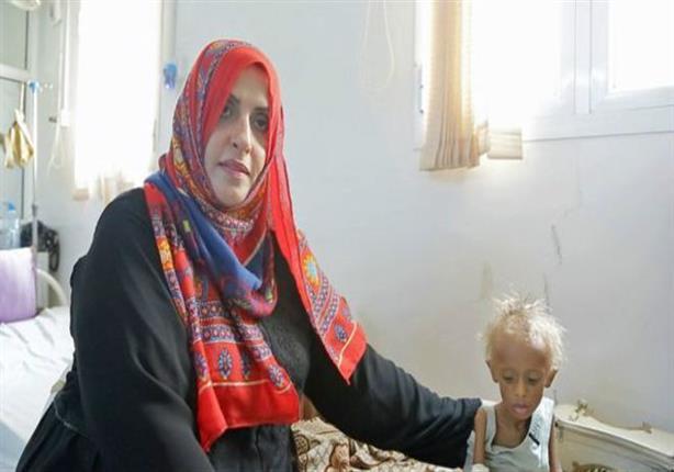 السيدة التي تحارب المجاعة منفردة في اليمن