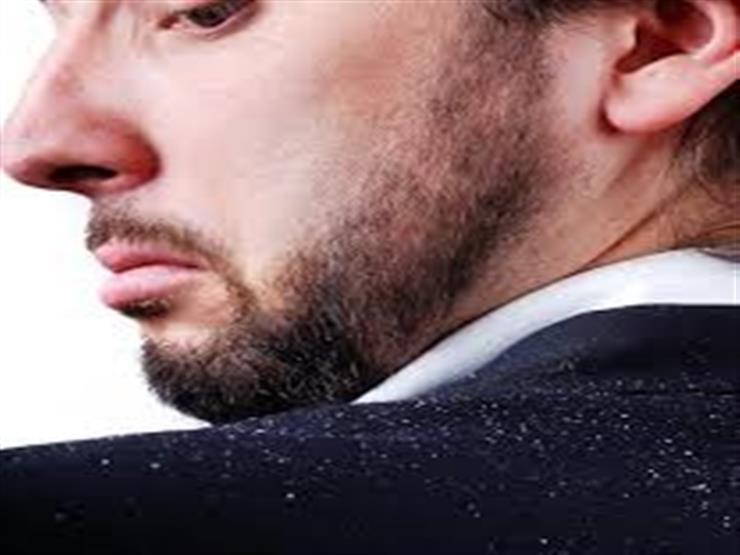 تعرف على أسباب زيادة القشرة في الشتاء.. وكيفية التغلب عليها