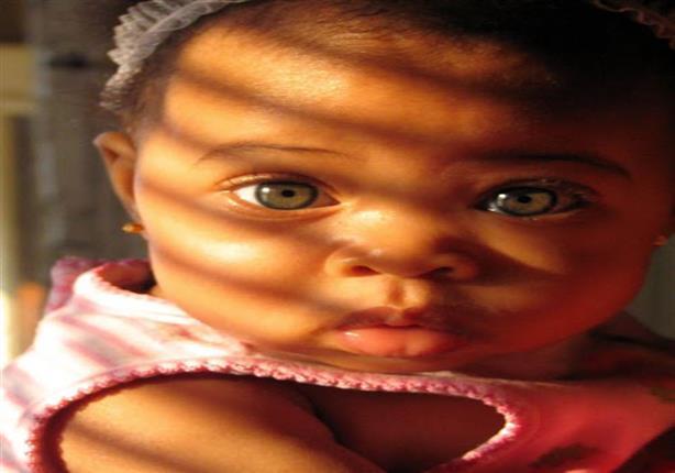 أشعة الشمس تهدد عيون طفلك