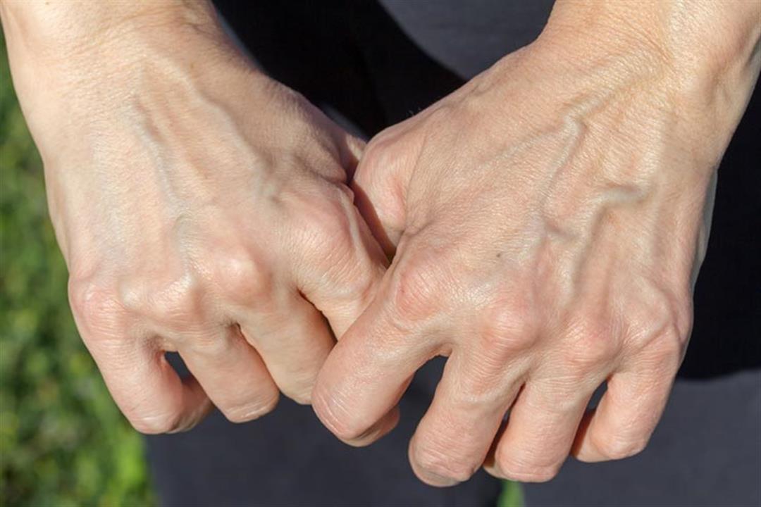 4 أسباب وراء بروز عروق الجسم.. إليك الفرق بينها وبين الدوالي