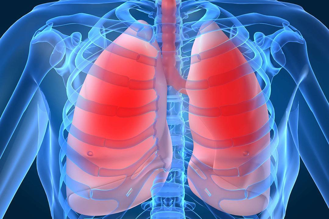 «الساركويد».. مرض غامض لم يكشف الطب أسبابه حتى الآن