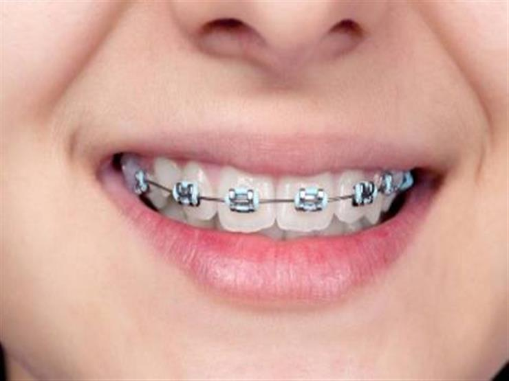 بعد التقويم.. 7 نصائح يجب اتباعها للعناية بالأسنان