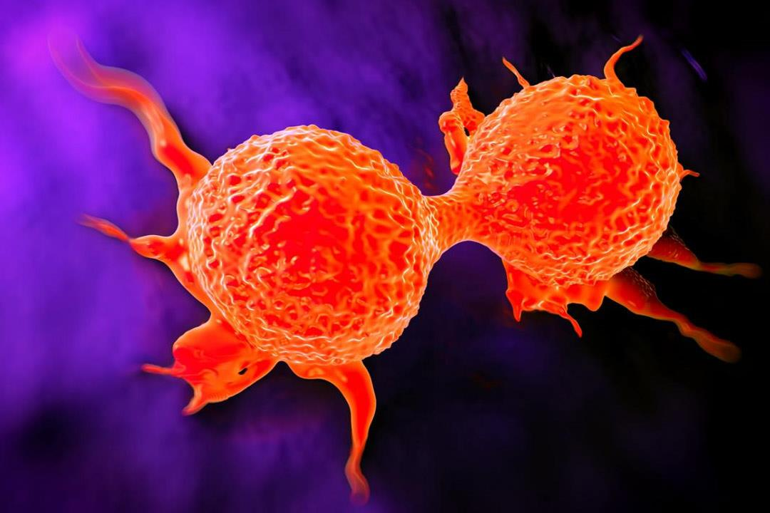 علاج جديد لسرطان الثدي باستخدام الضوء