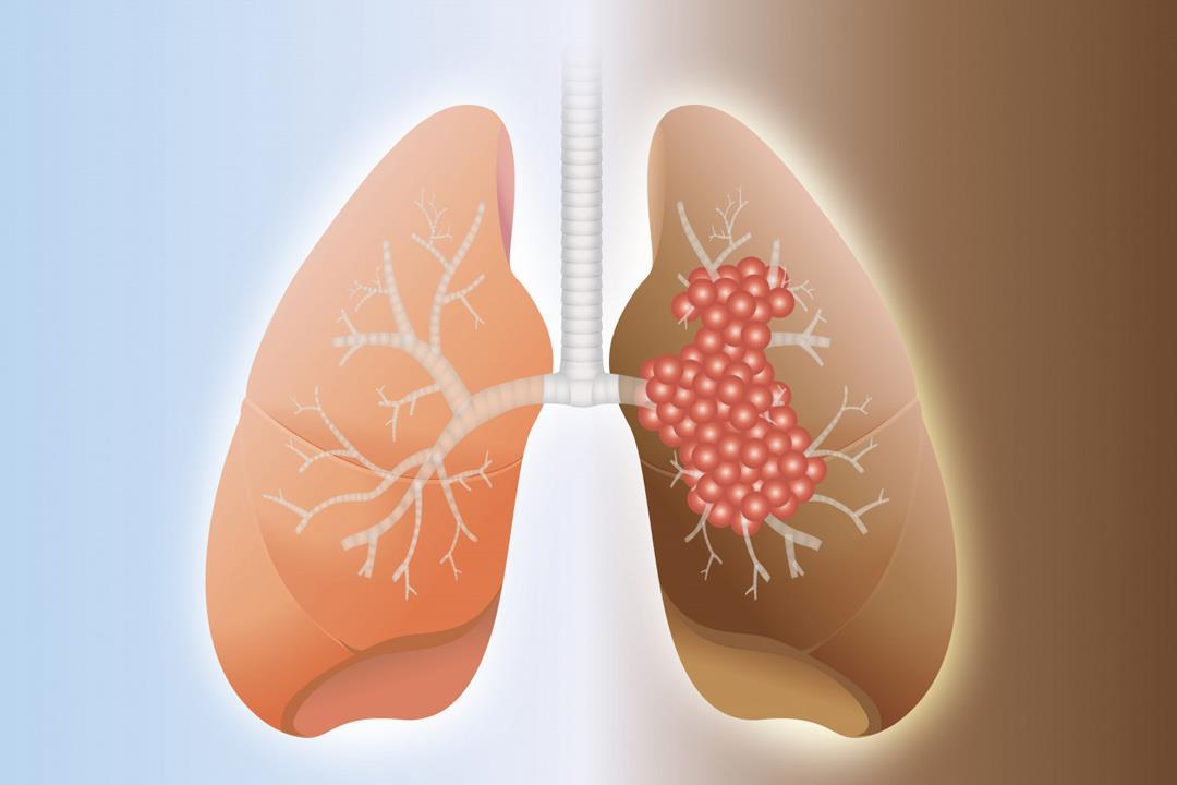 سرطان الرئة.. تعرف على أكثر أنواع السرطانات القاتلة