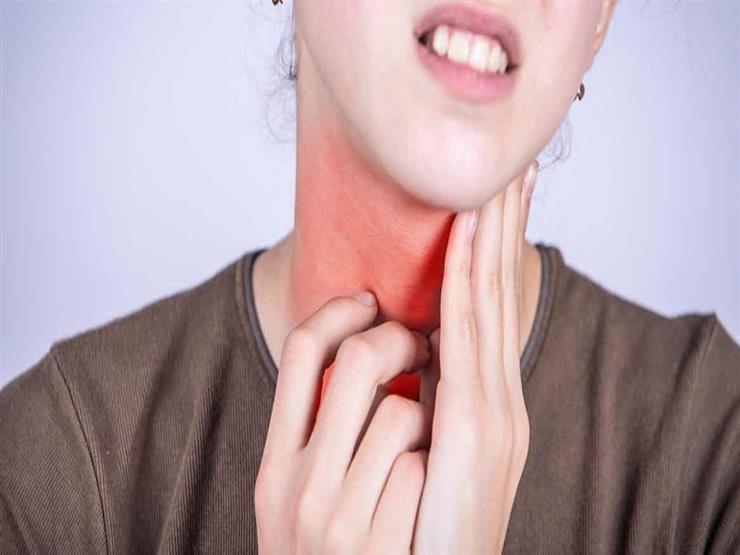 من أعراضها تيبس الرقبة.. كل ما تحتاج معرفته عن التهاب اللوزتين