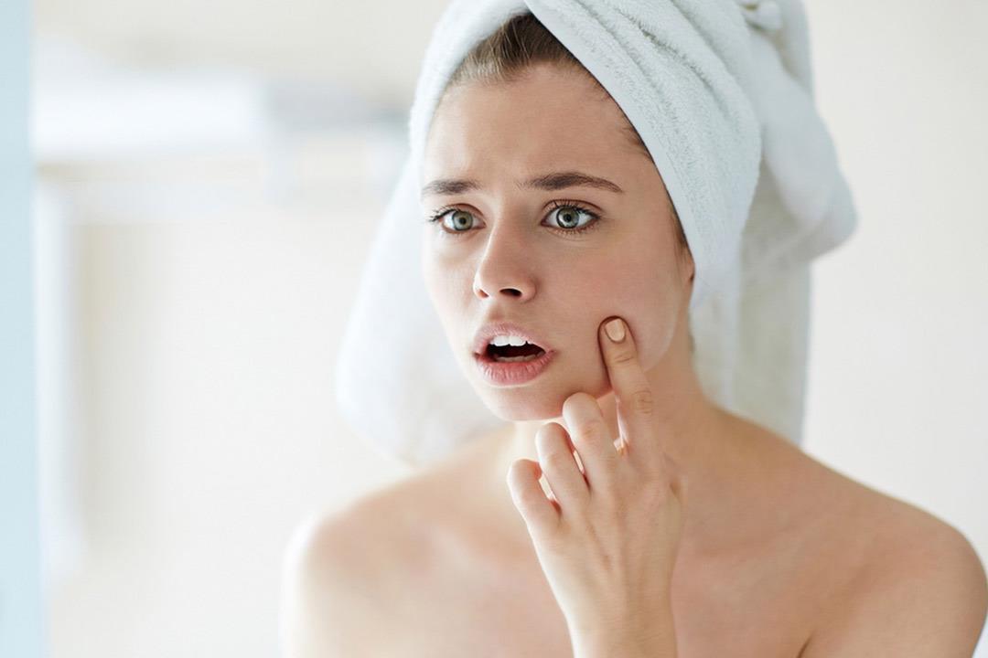 6 أسباب وراء احمرار الوجه.. تعرف عليها