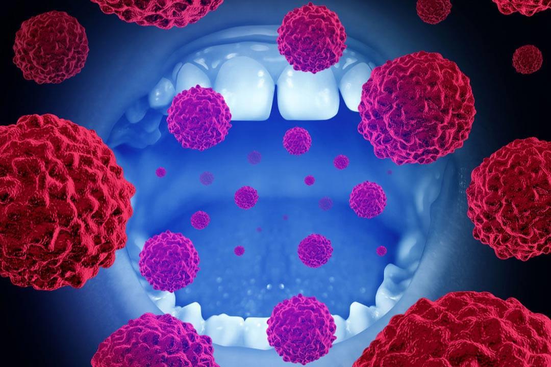 سرطان الفم يطارد الفقراء.. هل يمكنهم الهرب؟ (تقرير)