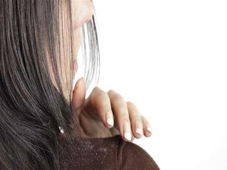 5 طرق منزلية لعلاج قشرة الرأس