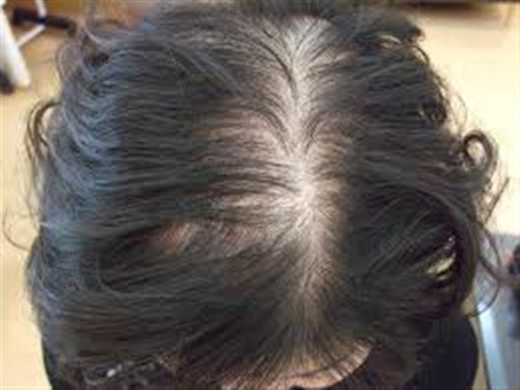 أطعمة شائعة تسبب الصلع وتساقط الشعر.. منها الكبدة