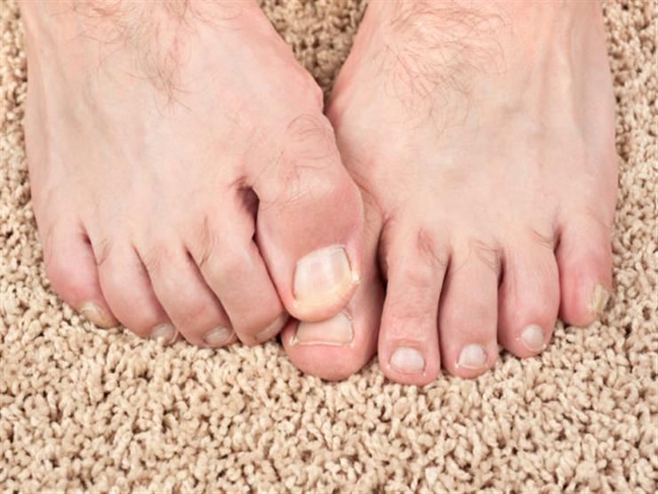 4 طرق منزلية لعلاج فطريات القدمين في فصل الشتاء