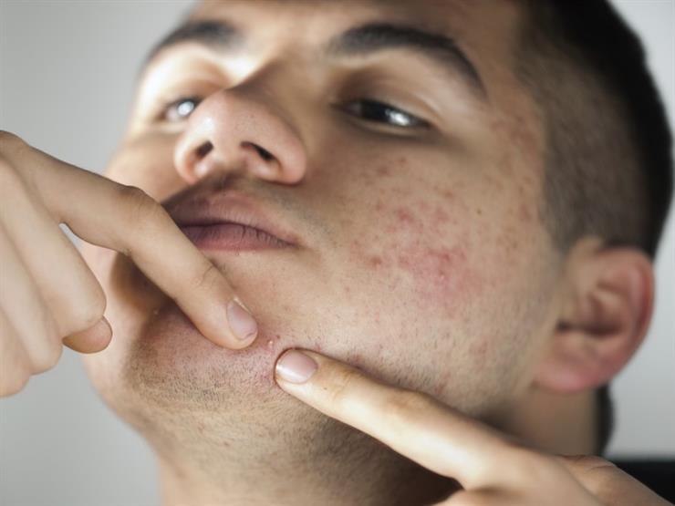 كيف تتخلص من البثور التي تظهر تحت الجلد؟