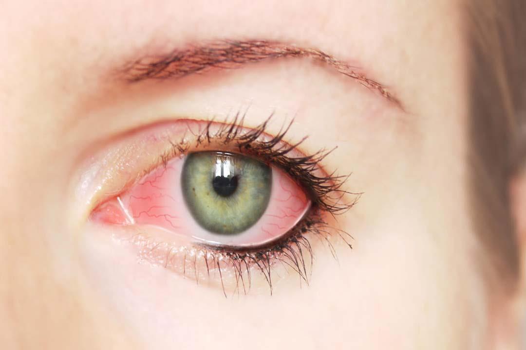 منها التهابات العين ..  8 أعراض للرمد الربيعي (فيديوجرافيك)