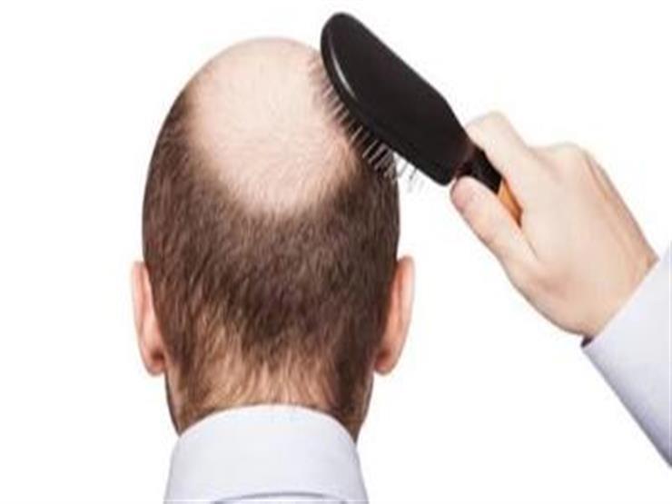 """للرجال.. أنقذ شعرك من أضرار """"الچيل"""" واستخدم هذه المكونات الطبيعية"""