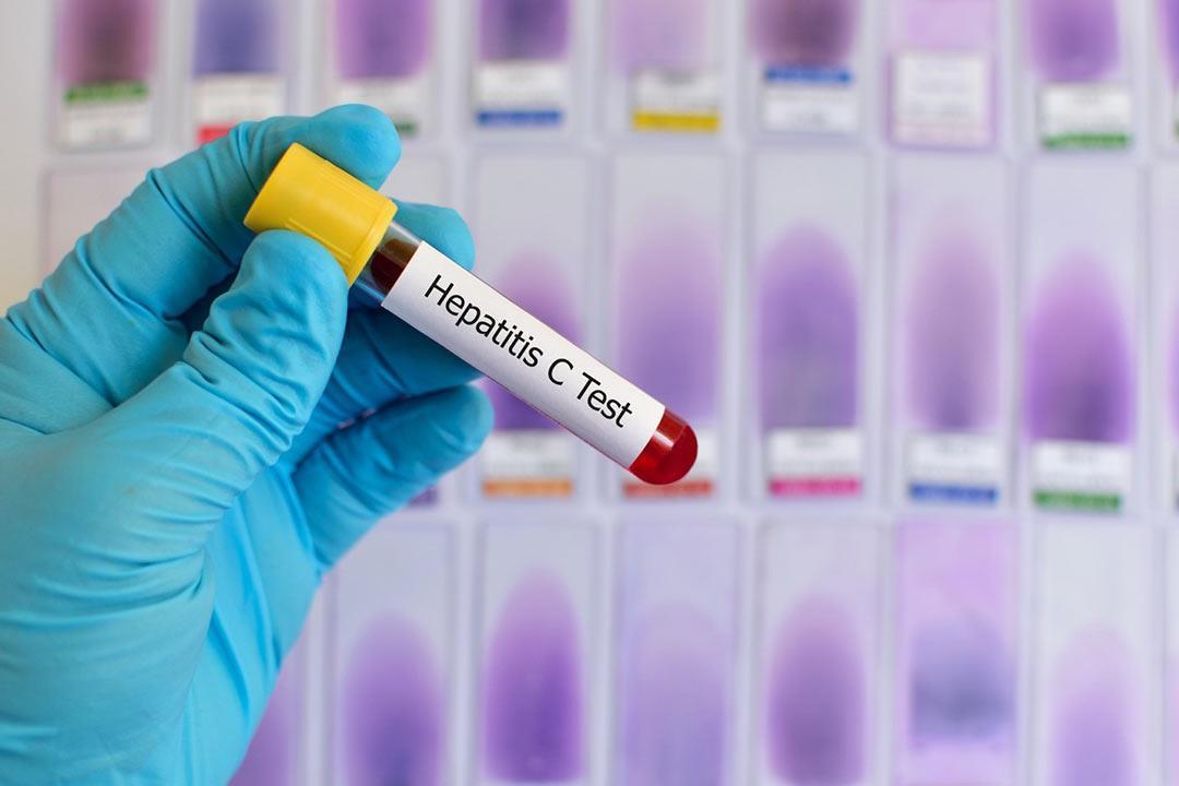 إهمالها قد يصيبك بالسرطان.. 8 معلومات ضرورية عن الفيروسات الكبدية