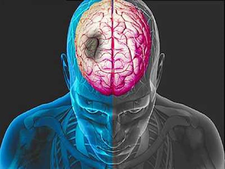 """رئيس لجنة """"السكتة الدماغية"""": تضاعف معدلات الإصابة بالجلطة خلال 15 عامًا"""