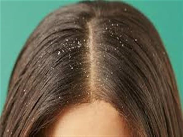 natural ways to get rid of dandruff
