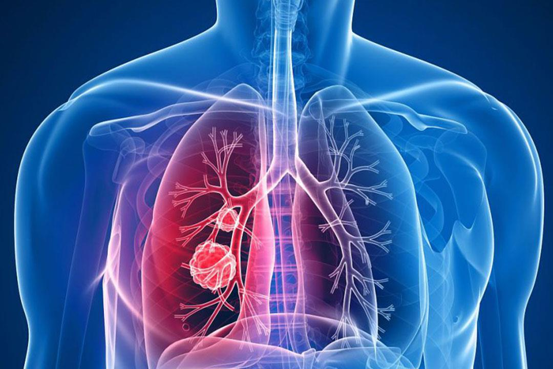 علاج جديد لسرطان الرئة ذو الخلايا غير الصغيرة
