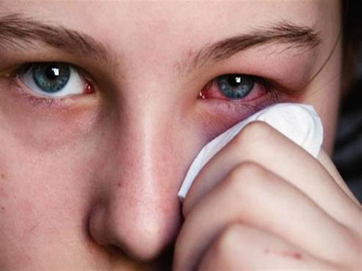 بعضها يشير لارتفاع الكوليسترول.. أمراض تكشفها العين