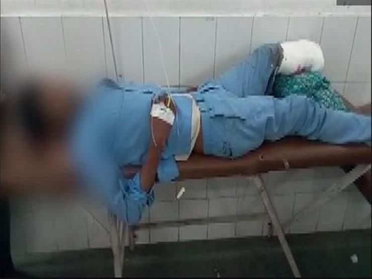 أطباء يستخدمون ساق مريض مبتورة كوسادة