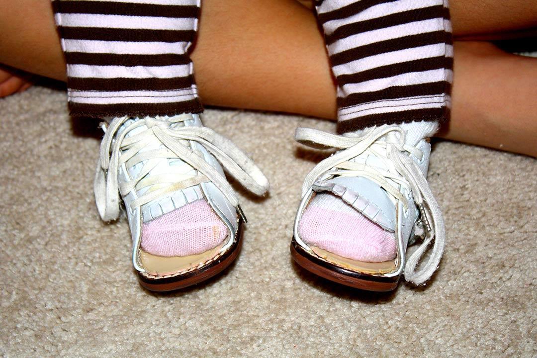 تقوس الساقين عند الأطفال.. مشكلة شائعة والحل بسيط