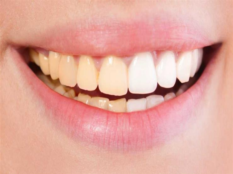 لون الأسنان الصحية.. بيضاء أم صفراء؟