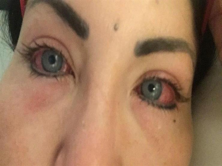 ae970314f بالصور- عارضة أزياء أرادت تغيير لون عينيها فحدثت كارثة | مصراوى