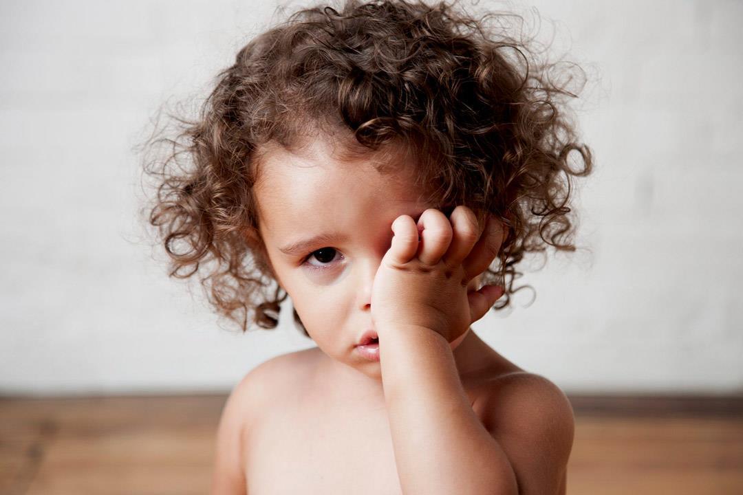 تلين القرنية يهدد نظر الأطفال.. إليك العلاج