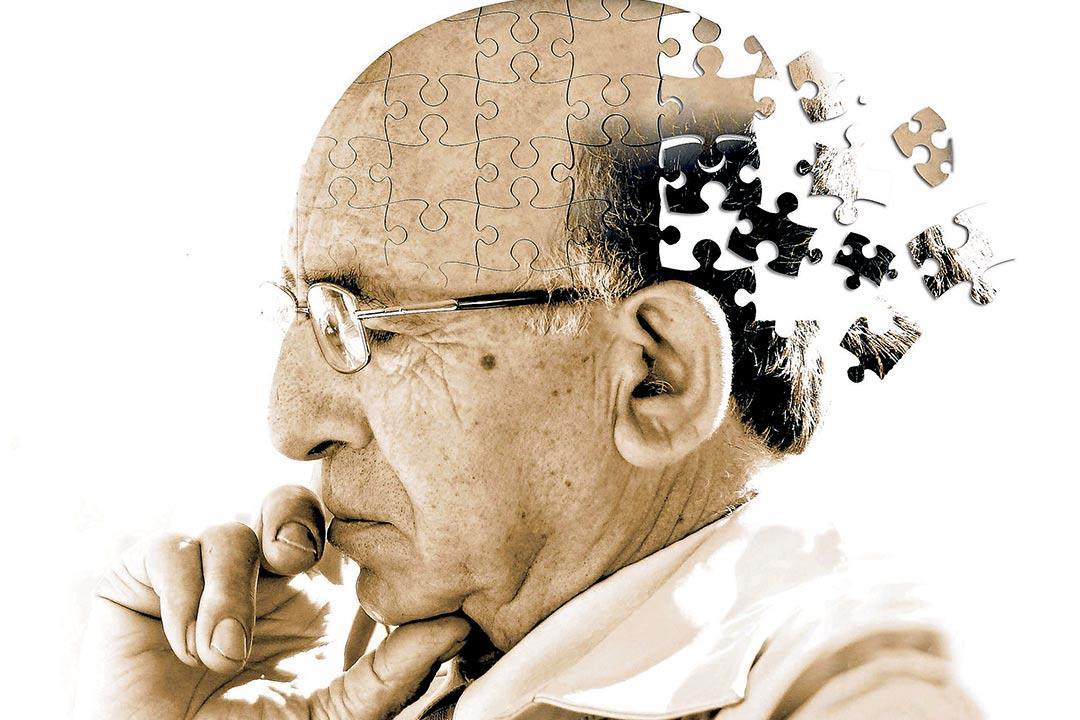 خمس وسائل لاكتشاف الإصابة بمرض الزهايمر مبكرا