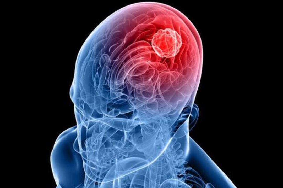 أحمد البسيوني: القسطرة التداخلية أحدث علاجات جلطات ونزيف المخ